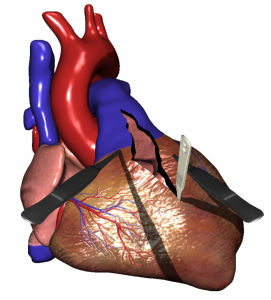 Cardiac Surgery Simulation - calculating tissue deformation